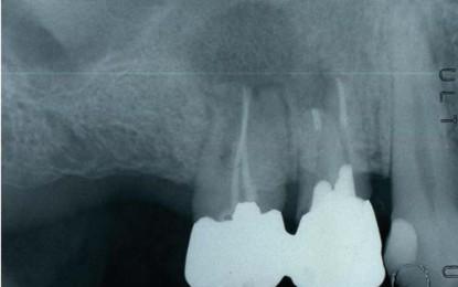 Lesione di origine endodontica di grandi dimensioni e programmazione chirurgica