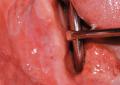 Tumore odontogeno a cellule fantasma