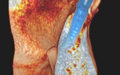 Grave compromissione radicolare risolta con chirurgia implantare con innesto di biovetri