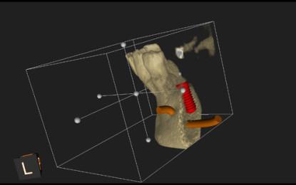 La TC Cone Beam nella pianificazione implantare
