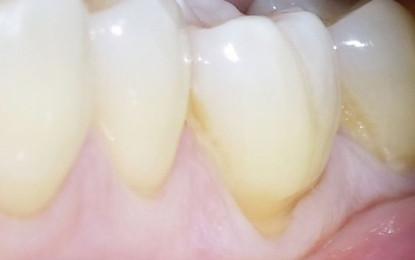 Lembo a scorrimento laterale e coronale con innesto di tessuto connettivo