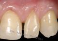 Recupero estetico di 2.1 con fessura di Stillmann: approccio protesico BOPT