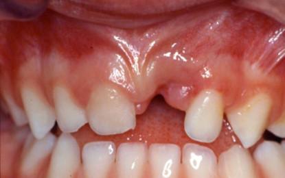 Review: avulsioni traumatiche  in dentatura decidua