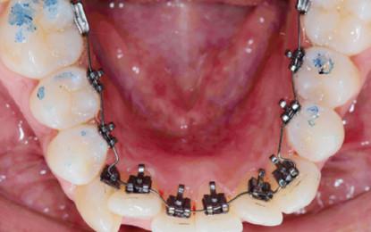 Ortodonzia linguale semplificata  con bracket a controllo bidimensionale