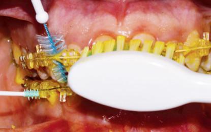 """Tecnica di spazzolamento """"Tailoring""""  per il paziente in trattamento ortodontico"""