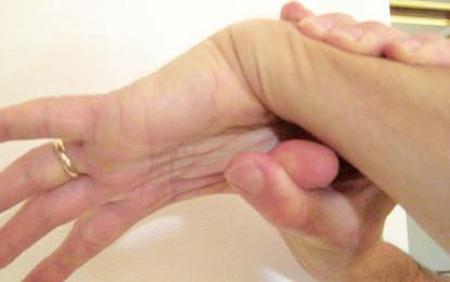 Ipermobilità articolare e disturbi  dell'Atm: nessuna relazione