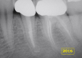Endodonzia indefinita in 3.6 ma clinicamente <br />efficace al follow-up a 10 anni