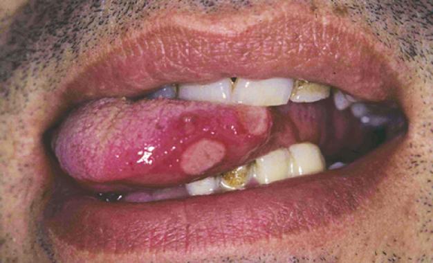 Manifestazioni dermatologiche  <br />di interesse odontoiatrico