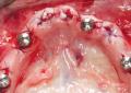 Riabilitazione dell&#8217;arcata inferiore  <br />con chirurgia implantare guidata