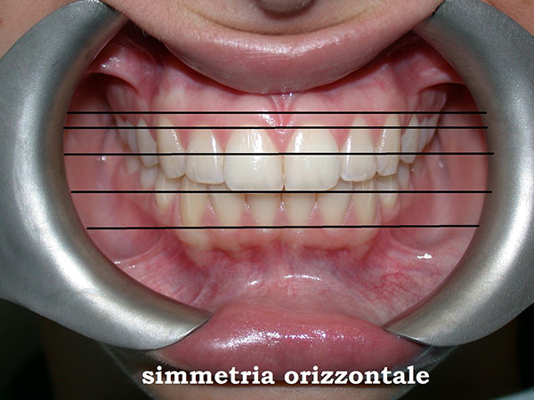 La bocca perfetta: i canoni della correttezza estetica in odontoiatria