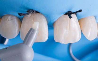 Chiusura di un diastema con ricostruzione diretta in composito