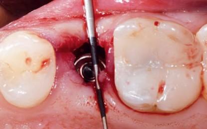 Impianto post-estrattivo con spira a doppio passo in un caso di scarsa densità ossea