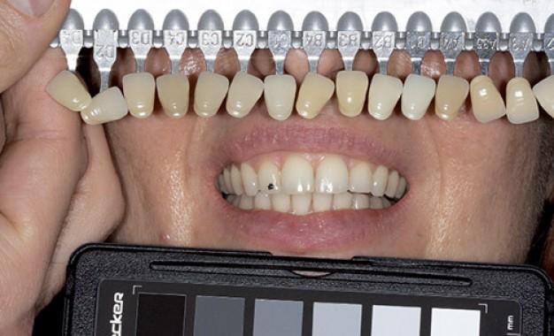 Progettazione illuminotecnica <br />dello studio odontoiatrico