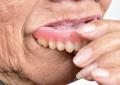 Denosumab e osteonecrosi <br />dei mascellari: attenzione <br />a estrazioni e protesi rimovibili