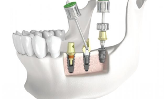 Kit universale per protesizzazione <br />su impianti
