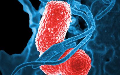 Tecnologie automatizzate per controllo e prevenzione del rischio infettivo ambientale: la vaporizzazione
