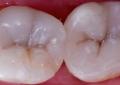 Restauri diretti complessi in composito <br>nella regione posteriore: caso clinico