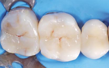 Cavità ampie nei posteriori: restauro in composito diretto o indiretto?