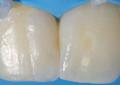 Recupero estetico funzionale di un elemento anteriore con composito a bassa contrazione
