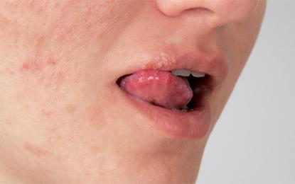 Anche gli herpesvirus sono implicati nell'eziologia della parodontite