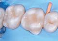 Restauri estetici nei settori posteriori con compositi bulk fill