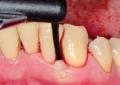 Terapia antibiotica topica contro la malattia parodontale: caso clinico