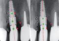 Remineralizzazione ossea perimplantare con terapia fotodinamica: controllo a 3 anni