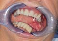 Riabilitazione implanto protesica dopo terapia chirurgico-oncologica per carcinoma linguale