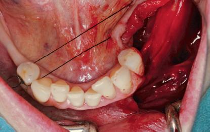 Ricostruzione della cresta alveolare con struttura in titanio 3D personalizzata