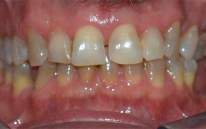 Valutazione polisonnografica di Osas moderata trattata con dispositivo di avanzamento mandibolare