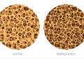 Osteoporosi e malattia parodontale, <br>una relazione con implicazioni cliniche