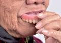 Protesi totali mascellari rimovibili: <br>valida alternativa, soprattutto <br>con il cad-cam