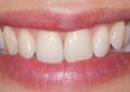 Terapia parodontale con antibiotico locale di un difetto osseo verticale in zona estetica