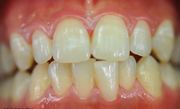 Le manifestazioni orali <br>della malattia celiaca