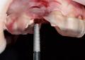 One abutment-one time, metanalisi <br>conferma un minor <br>riassorbimento osseo