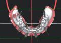 Pianificazione chirurgica software-guidata per il posizionamento implantare post-estrattivo