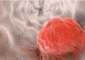 Microbiota orale mostra <br>un collegamento tra parodontite <br>e tumori dell&#8217;esofago