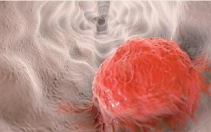Microbiota orale mostra un collegamento tra parodontite e tumori dell'esofago