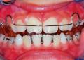 Retrusione mandibolare scheletrica <br>con dispositivo twin block <br>nella correzione di II classe