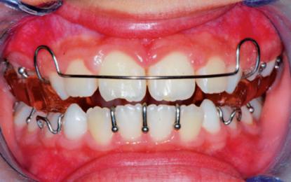 Retrusione mandibolare scheletrica con dispositivo twin block nella correzione di II classe