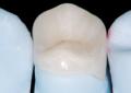 Cad-Cam e odontoiatria adesiva indiretta su denti posteriori non vitali