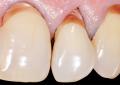 Compositi flowable e convenzionali: <br>poche differenze nel restauro <br> di lesioni cervicali non cariose