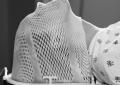Tumori di testa e collo, studio OraRad <br>valuta interventi odontoiatrici <br>prima della radioterapia