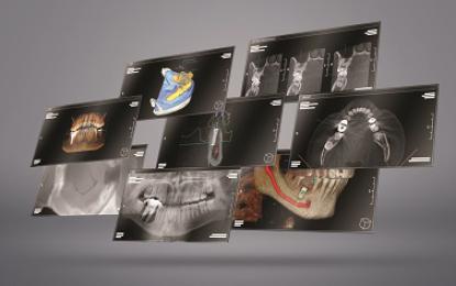 KaVo presenta 4 workshop gratuiti sui temi della radiologia 3D di oggi e di domani