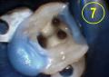 Controllo dell'ansia in endodonzia: impiego di benzodiazepine in un paziente odontofobico