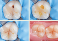 Restauri danneggiati, la riparazione <br> è preferibile nei pazienti a basso rischio carie