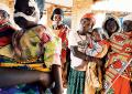 In Burundi con Smom onlus: un piccolo <br>paziente con esiti orali <br>di sindrome di Kwashiorkor